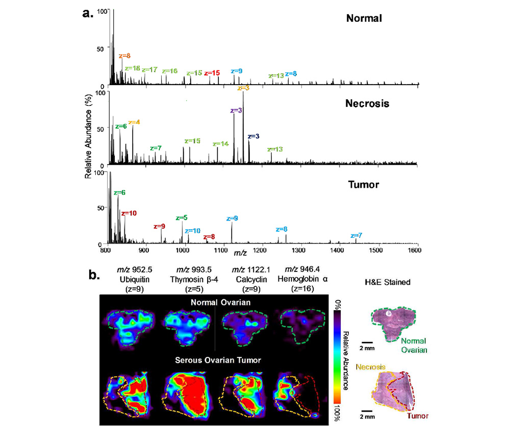 LMJ-SSP-FAIMS-MS profiling and imaging of human normal and cancerous ovarian tissues