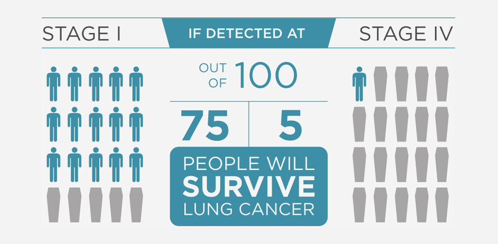 Early detection of lung cancer improves survival rates